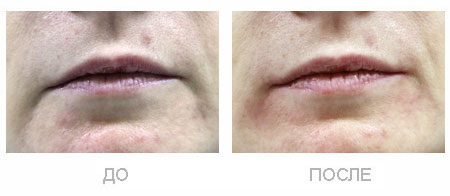 Коррекция морщин 'марионетки'. До и сразу после процедуры.