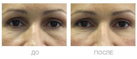 Коррекция носослезной борозды Рестилайн 0,5 с использованием гибкой кинюли. До и сразу после процедуры.