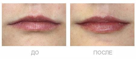 Коррекция контура губ без их увеличения