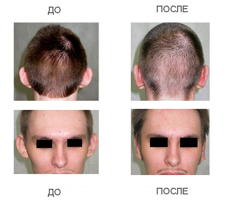 иссечение рубца на голове фото