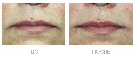 Подъем углов рта с помощью Рестилайн. До и сразу после процедуры