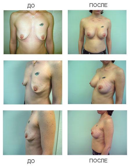 Бочкарева увеличила грудь